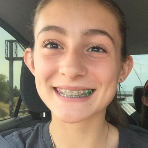 Lyons Orthodontics EDH Review - During Braces